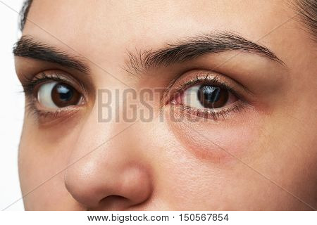 Woman With Red Eye