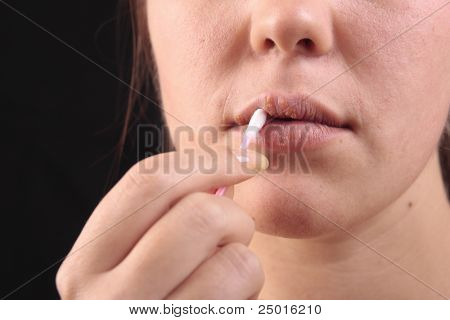 Lips affected by herpes. Treatment with a cotton swab.