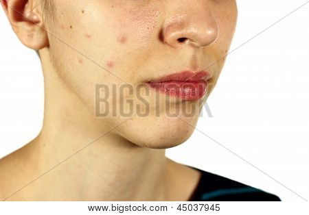 Girl With Bad Skin Acne And Black Heads