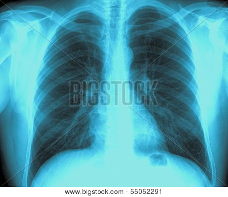 X-ray Image Healthy Chest