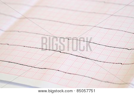 Tape ECG With Ventricular Asystole