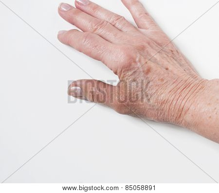 Injured Thumb of Elderly Hand
