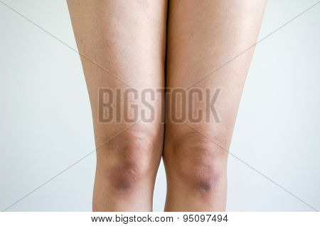 Thighs And Knees Of The Woman