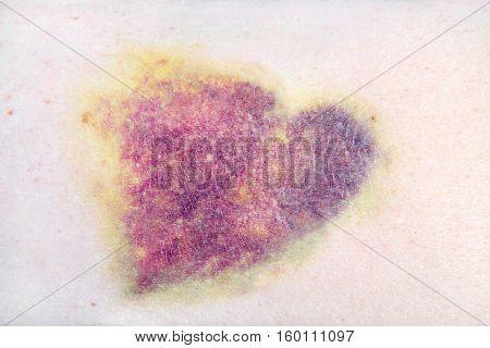 Closeup of a heart shaped bruise