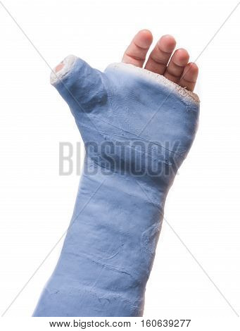 Arm Plaster / Fiberglass Cast  With The Thumb Extended