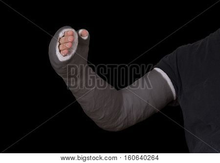 Young Man Wearing A Black Long Arm Plaster Fiberglass Cast