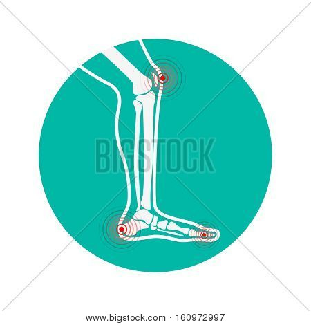 Human leg pain zones. Design elements for infographic. Vector illustration.