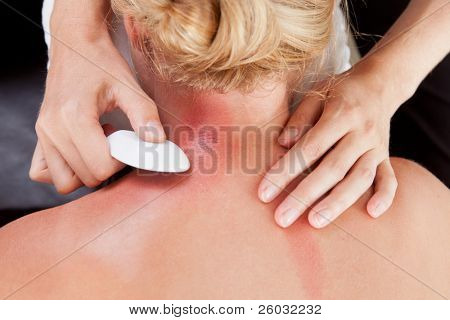 Above view of woman receiving gua-sha treatment on back and neck