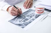 Male Doctor Or Dentist Writing Report Working With Tooth X-ray Film, Model And Equipment Used In The poster