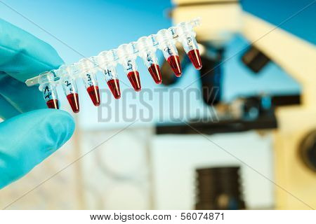 PCR strip in hand