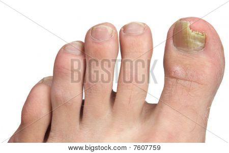 Toenail Fngus At Peak Infection