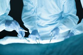 picture of operation theater  - Medical team performing operation - JPG