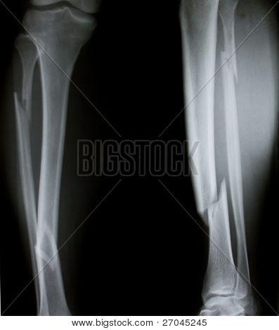 X-ray of both human legs (broken legs)