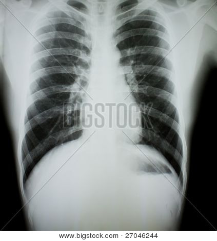 Brust X-Ray.