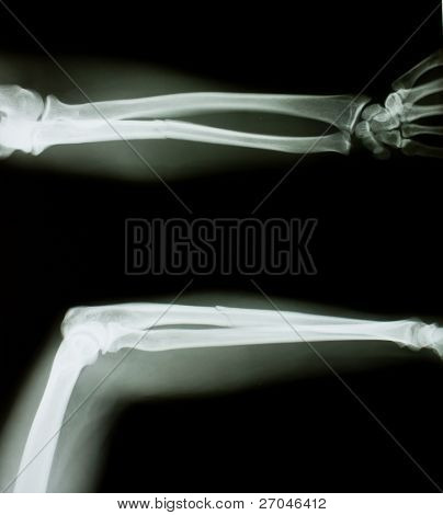 X-ray of both human arms.
