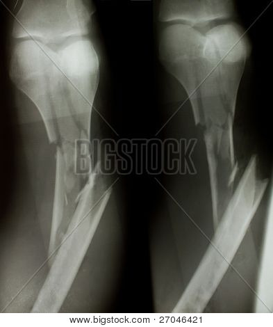 X-ray of both human legs (fractures).