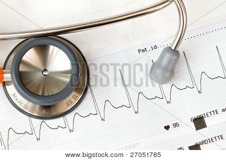 Stethoscope lying on ECG diagram