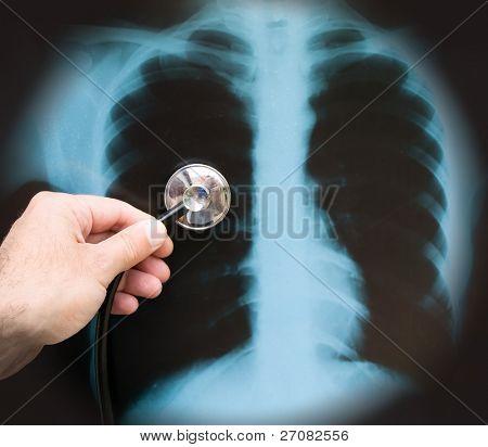 Lungenentzündung Konzept