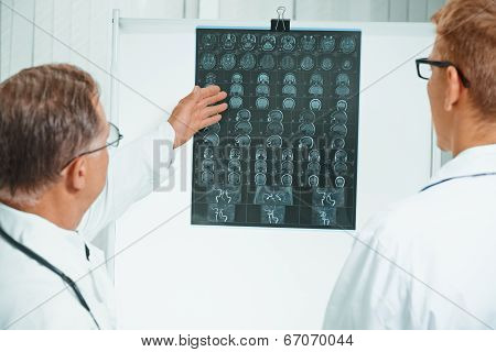 Doctors Are Analyzing Mri Image In Hospital