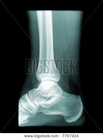 healthy ankle on x-ray