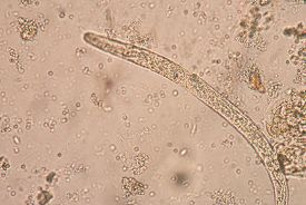 picture of parasite  - Strongyloides stercoralis is a human parasitic roundworm causing the disease strongyloidiasis - JPG