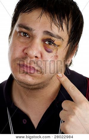 Man Pointing At His Black Eye