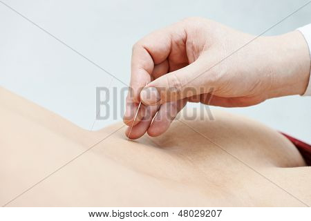 Hand of doctor inserting acupuncture needle