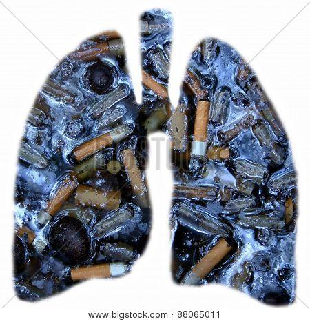 Smoker's lungs