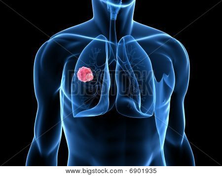 lung tumor