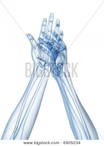 x-ray hands - arthritis