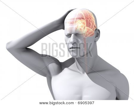 headache/migraine illustration