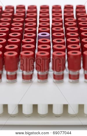 Test tubes with red lids surrounding one with purple lid