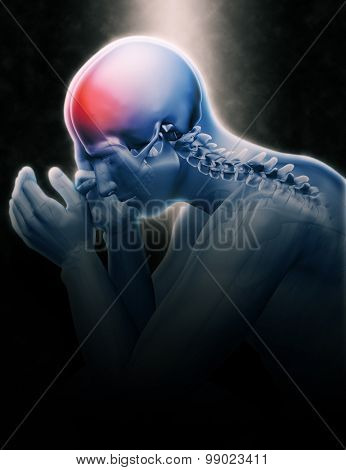 3D render of male figure holding head in pain