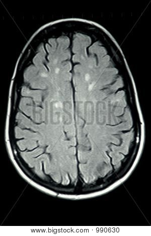Mri Brain Ms Single View