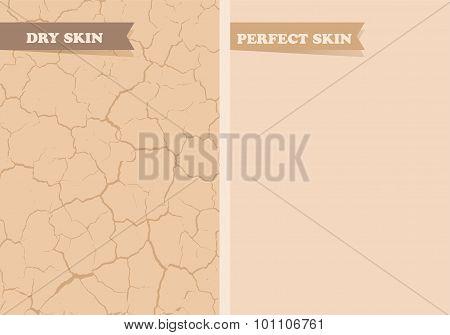 Dry skin, Perfect skin