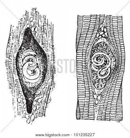 Trichina spiralis, vintage engraved illustration.