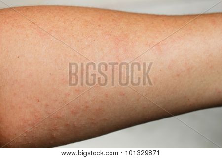 Human Skin, Presenting An Allergic Reaction.