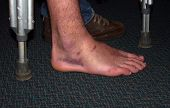 Sprained Ankle