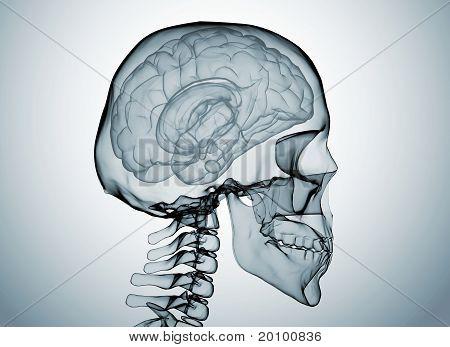 Cerebro X Ray