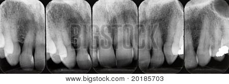 Upper Periodontal X-rays