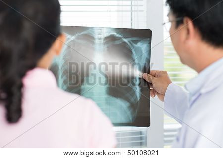 X-ray Analysis