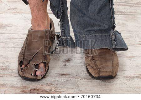 Poor Feet
