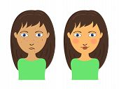 stock photo of face painting  - Girl face with acne and clear skin before and after - JPG