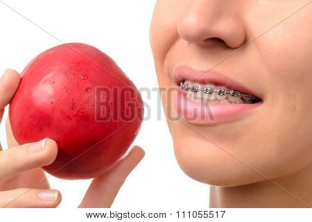 Female Teeth With Dental Braces And Red Apple