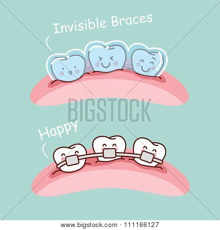 Cartoon Tooth With Invisible Braces