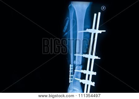 Collection Of Human X-rays  Showing Fracture Of Right Leg ,  Post  Operated With External Fixed