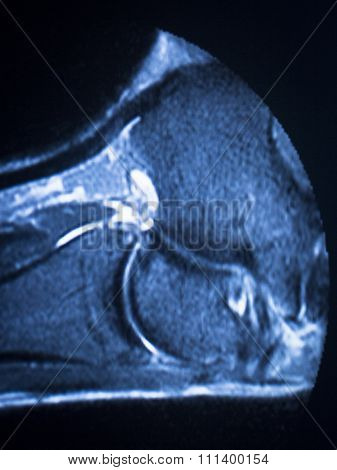 Mri Magnetic Resonance Imaging Ankle Scan
