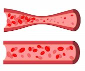 Постер, плакат: Bloody Artery Blockage Of Blood Vessels Sick Artery With Leukocytes Blood Cells In Human Vein Cl