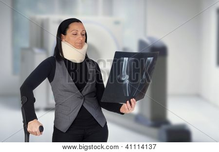 Woman with cervical collar and radiography in the hospital
