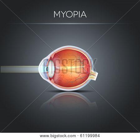 Human Vision Disorder, Myopia